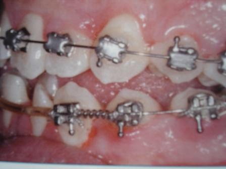 aparat ortodontic metalic